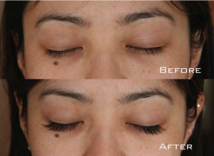 Before | After Eyelash Extension | Sydney Eyelash Extensions 1