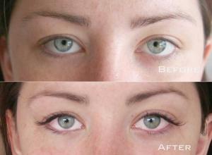 Before | After Eyelash Extension | Sydney Eyelash Extensions 10