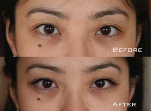 Before | After Eyelash Extension | Sydney Eyelash Extensions 2