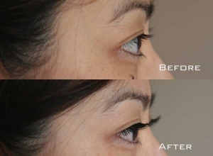 Before | After Eyelash Extension | Sydney Eyelash Extensions 3