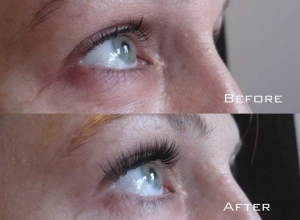 Before | After Eyelash Extension | Sydney Eyelash Extensions 5