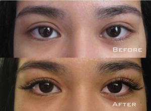Before | After Eyelash Extension | Sydney Eyelash Extensions 6