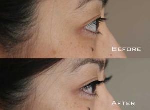 Before | After Eyelash Extension | Sydney Eyelash Extensions 7