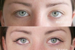 Before | After Eyelash Extension | Sydney Eyelash Extensions 10