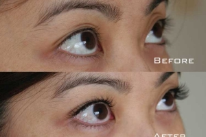 Before | After Eyelash Extension | Sydney Eyelash Extensions 11
