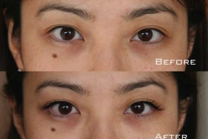 Before | After Eyelash Extension | Sydney Eyelash Extensions 2