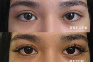 Before | After Eyelash Extension | Sydney Eyelash Extensions 6