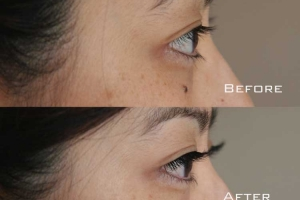 Before | After Eyelash Extension | Sydney Eyelash Extensions 7