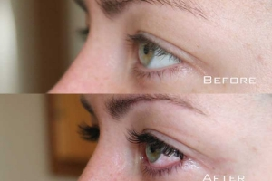 Before | After Eyelash Extension | Sydney Eyelash Extensions 8