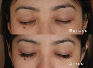 Before-After-Eyelash-Extensions-1