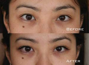 Before-After-Eyelash-Extensions-2