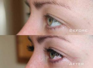 Before-After-Eyelash-Extensions-8